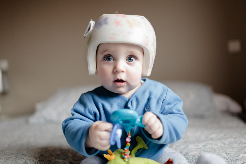 cute baby boy 6 months old looking at camera. He is wearing a helmet to correct plagiocephaly and he is playing with a green toy while wearing a blue jaket